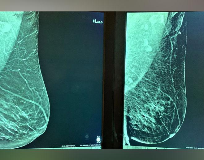 lymph-nodes-659-x-519